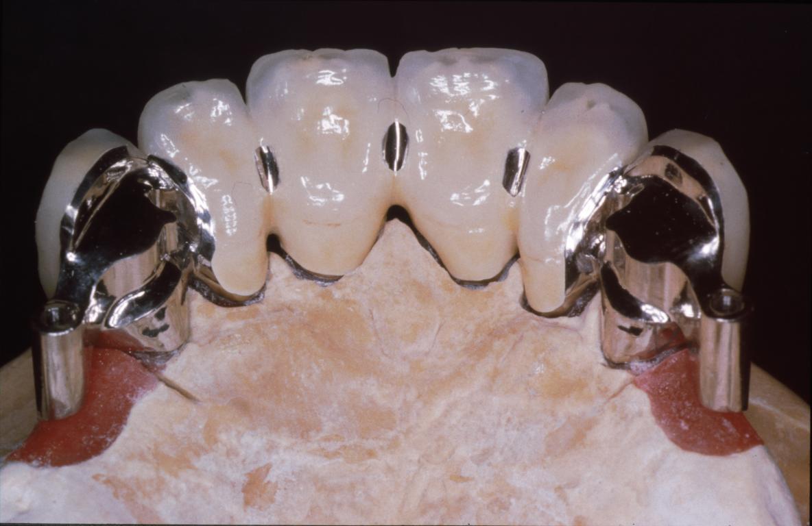 Kombinierter zahnersatz u2013 schenk dentaltechnik